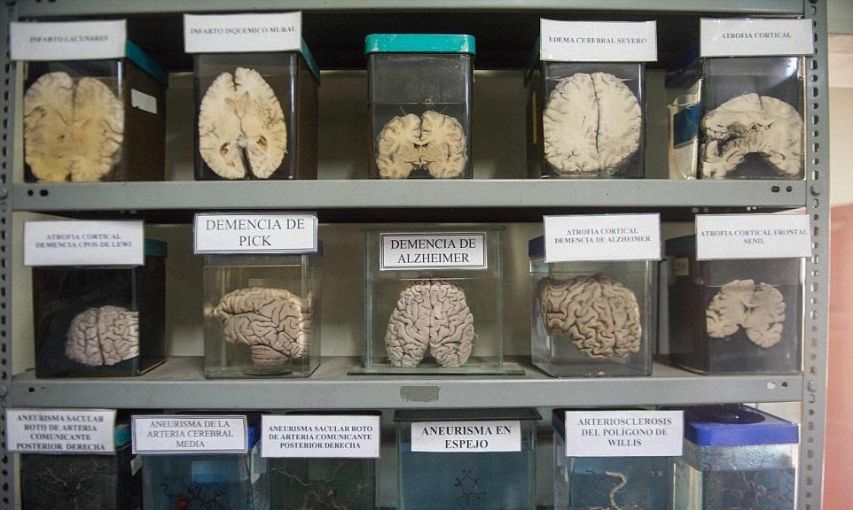 استقبال عجیب از موزه مغز های واقعی انسان در پرو/اسرار مغز را بخوانید