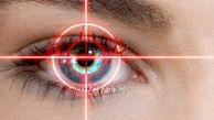 بهترین سن برای عمل لیزیک چشم