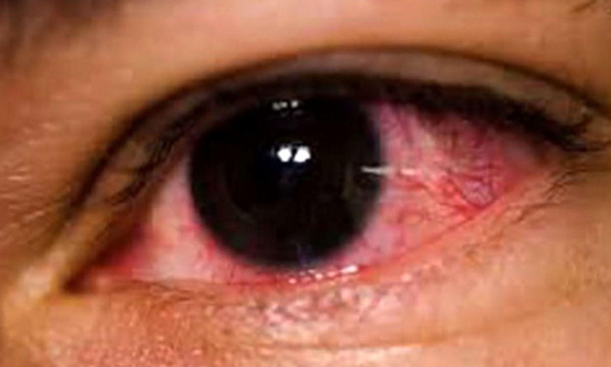 درمانهای خانگی قرمزی چشم