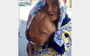 پیرزن فیلیپینی با توموری دوبرابر صورتش +تصاویر