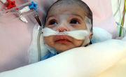 جراحی قلب باز نوزاد ۲۶ روزه در مشهد با موفقیت انجام شد