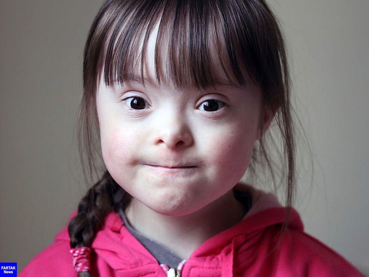 عمدهترین عوامل موثر بر تولد کودکان سندرم داون چیست؟