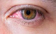 شایع ترین علت های قرمزی چشم