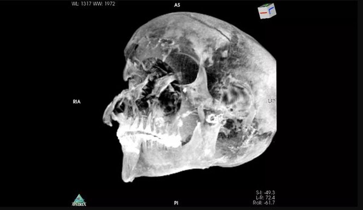 کشف راز مرگ فرعون مصری