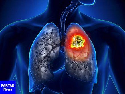 کاهش مرگومیر ناشی از سرطان ریه با مدلهای جدید پیشبینی