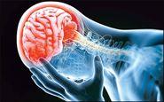 راهی برای درمان سکته مغزی حاد