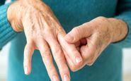 پزشکان چکار می کنند تا به آرتریت روماتوئید مبتلا نشوند؟