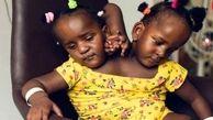 پدر بر سر دو راهی/ انتخاب مرگ و زندگی بین دو دخترش/ باید یکی از دخترانش بمیرد!+ عکس دردناک