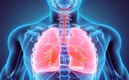 10هشدار که خبر از ضعیف شدن ریه ها می دهد
