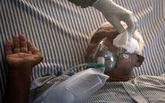 تخلیه چشم افراد مبتلا به قارچ سیاه در تهران