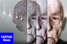علائمی که خبر از شروع آلزایمر می دهد