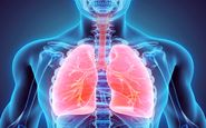 بیماری مزمن تنفسی سومین قاتل انسانهای دنیا
