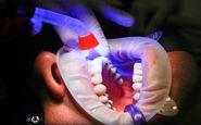 راه های مقابله با بیماریهای شایع دندان