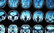افزایش خطر ابتلا به کرونا با داشتن نوعی ژن معیوب مرتبط با زوال عقل