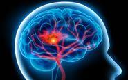 چه کسانی بیشترین سکته مغزی را می کنند؟