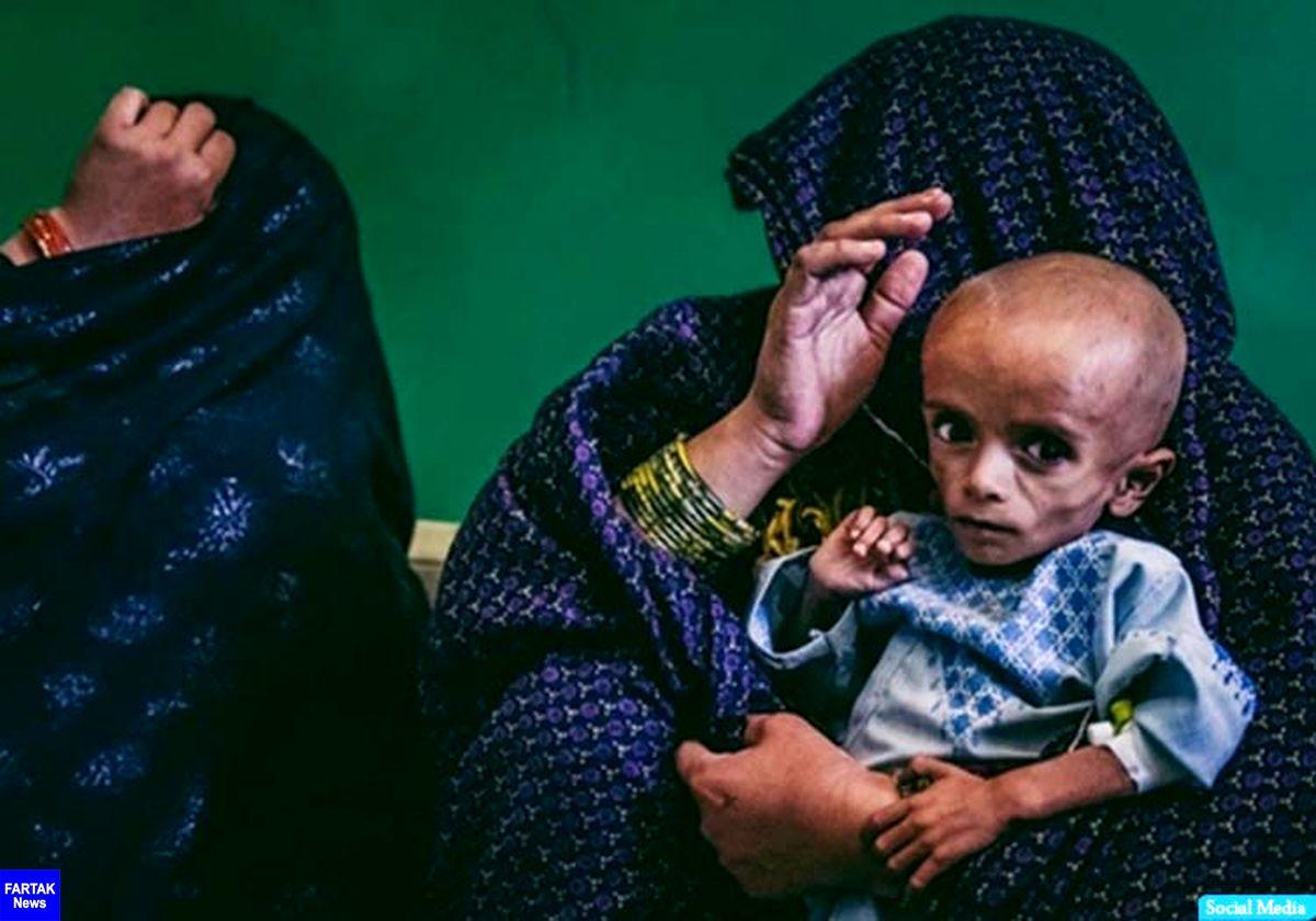 ابتلای نیمی از کودکان زیر ۵ سال افغان به سوء تغدیه شدید
