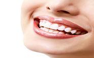 بهترین روش جرم گیری دندان ها