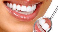 ۵ عادت ساده برای مراقبت از دندانها