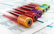 MCV در آزمایش خون چیست و بالا و پایین بودن آن چه معنایی دارد؟
