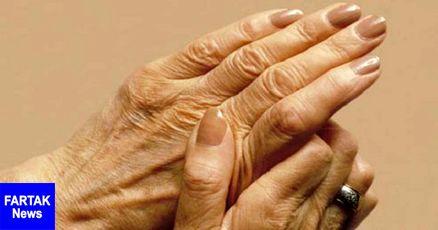 ۷ دلیل پیر شدن دستها