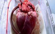 انجام دهمین بیمار پیوند قلب در تبریز