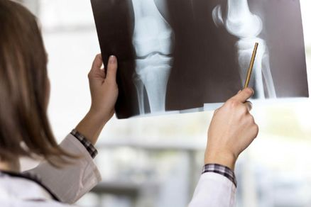 شایعترین شکستگی در زنان بالای ۴۰ سال چیست؟