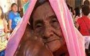 زنی که چهره عجیبش باعث شهرتش شد/عکس