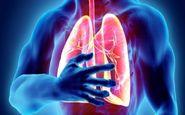 چگونه آمبولی ریه را تشخیص بدهیم؟