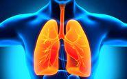 پاکسازی ریه از نیکوتین مخصوص قلیانی ها یا سیگاری ها