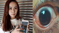 عجیب اما واقعی / پخته شدن چشم دختر جوان با نور موبایل + عکس