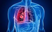 خوراکی های مفید برای سلامت ریه