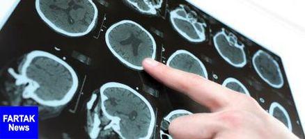 خوشبینی خطر دومین سکته مغزی را کاهش میدهد