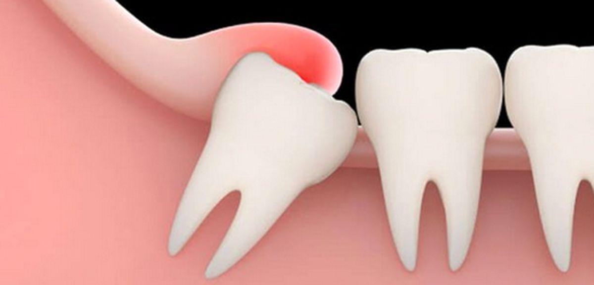 دندان عقل فایده ای هم دارد؟