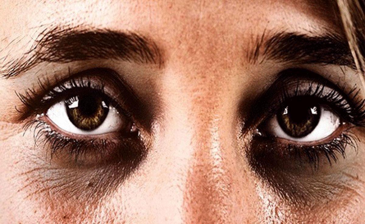سیاهی دور چشم،موضوعی که باید جدی گرفته شود
