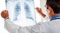 بیماریهایی که ریههایتان را هدف قرار دادهاند