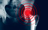 شکستگی ناشی از پوکی استخوان در کمین مردان و زنان بالای ۵۰ سال
