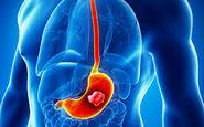تاثیر نوشیدنیهای داغ در سرطان معده