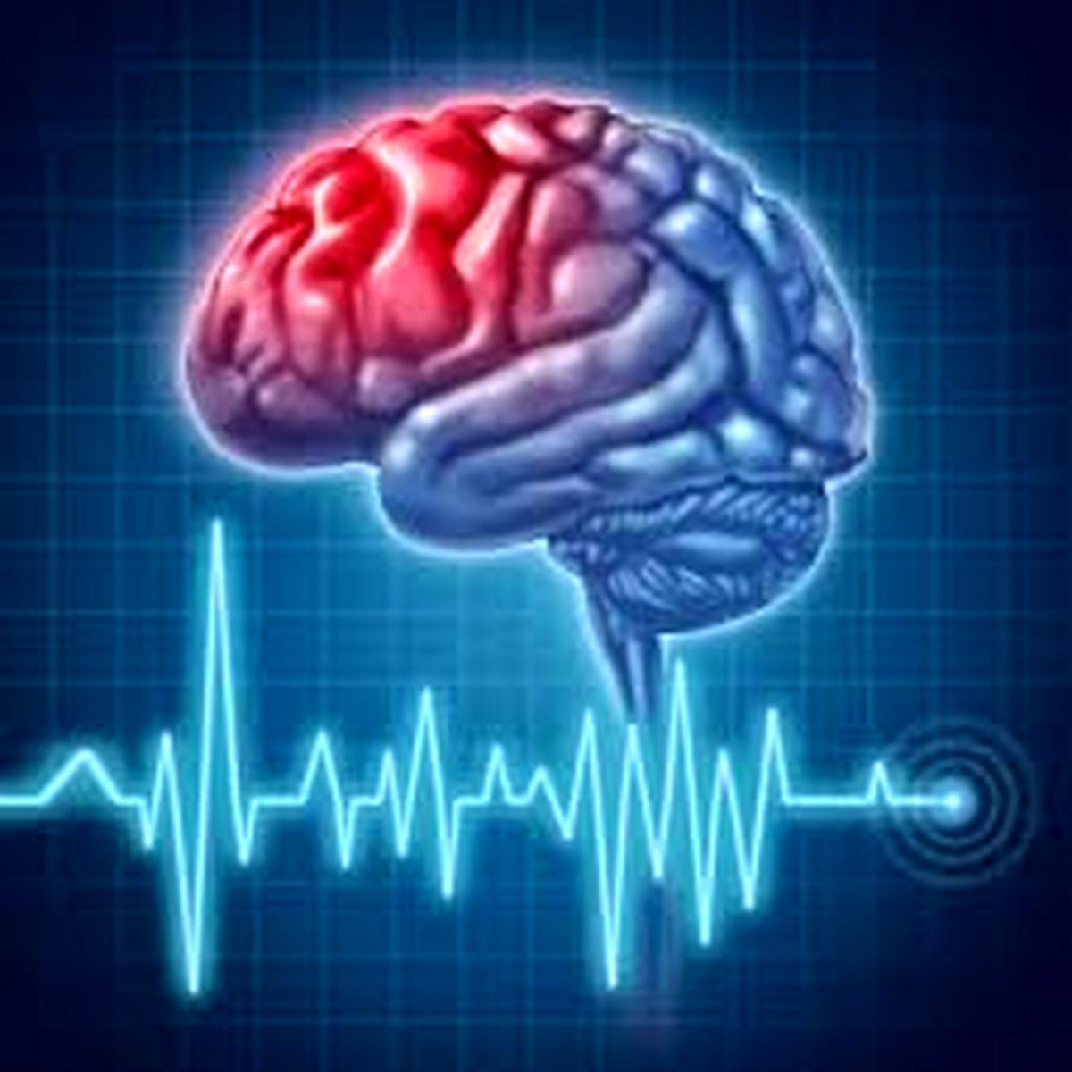 سکته مغزی و کرونا با هم رابطه دارند؟