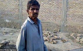 بیماری وحشتناک مرد جوان پاکستانی سوژه رسانه ها شد+ فیلم