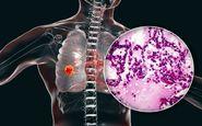 چند نشانه عجیب سرطان ریه