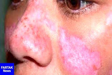 اختلال در بخش های مختلف بدن با بیماری لوپوس