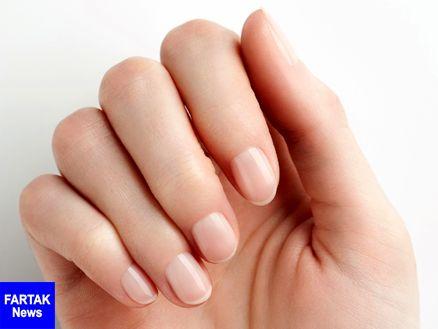 بیماری که با بررسی سلامت ناخنها تشخیص داده می شود