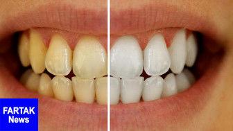 علل تغییر رنگ دندان ها+ راه درمان