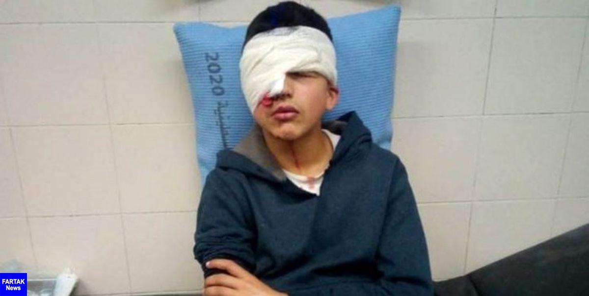 نوجوان فلسطینی به ضرب گلوله صهیونیستها یک چشم خود را از دست داد