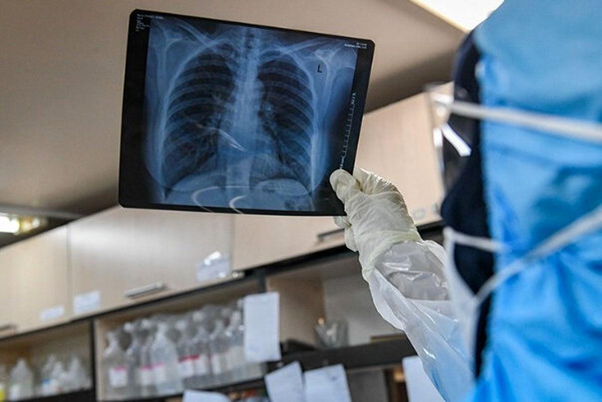 چهارشنبه 29 بهمن| تازه ترین آمارها از همه گیری ویروس کرونا در جهان