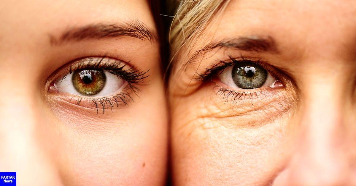پوست صورت از چه سنی و چرا پیر میشود؟