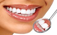 سن طلایی برای سفید کردن دندان ها
