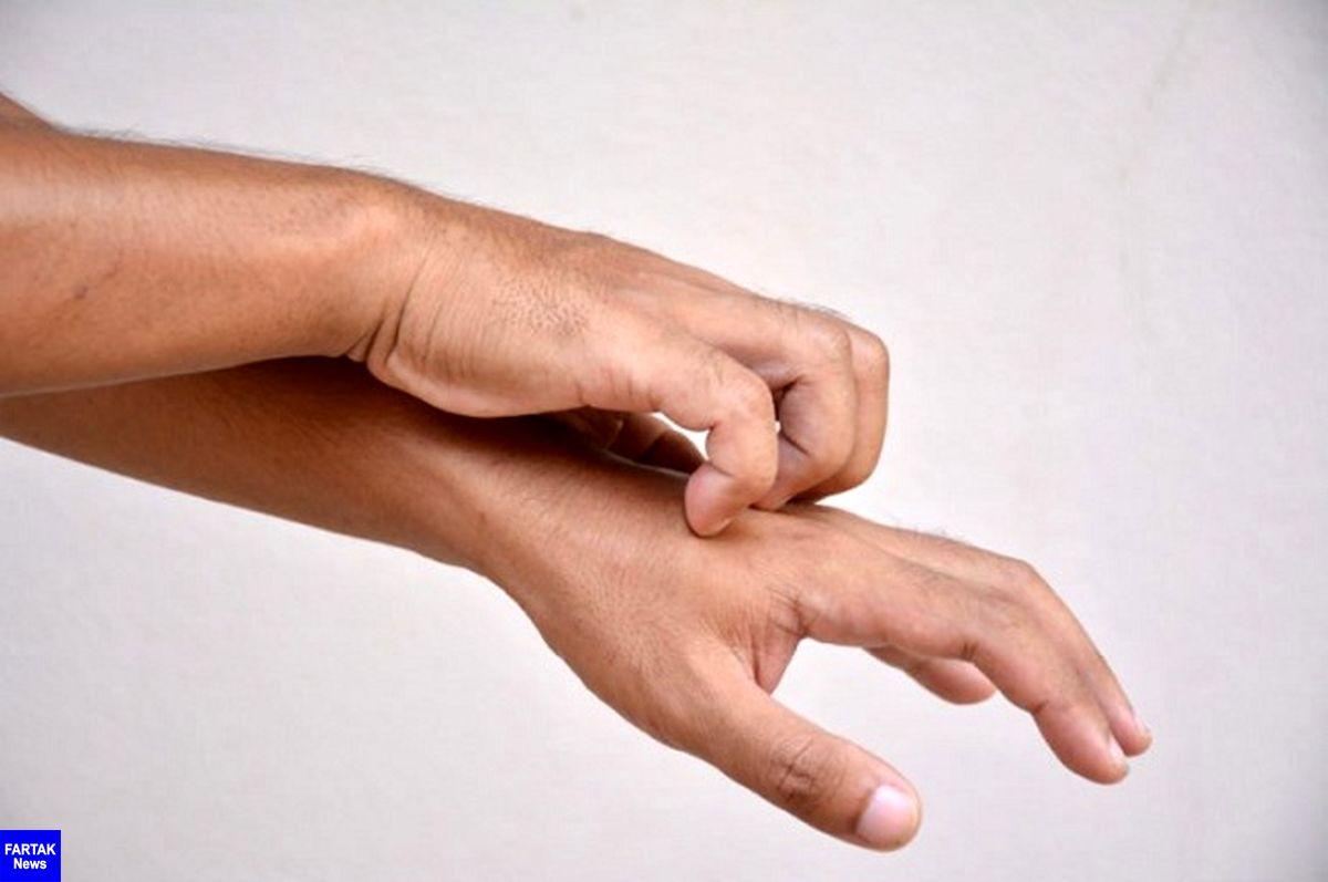 خارش پوست در نقاط مختلف بدن خبر از چه بیماریهایی میدهند؟
