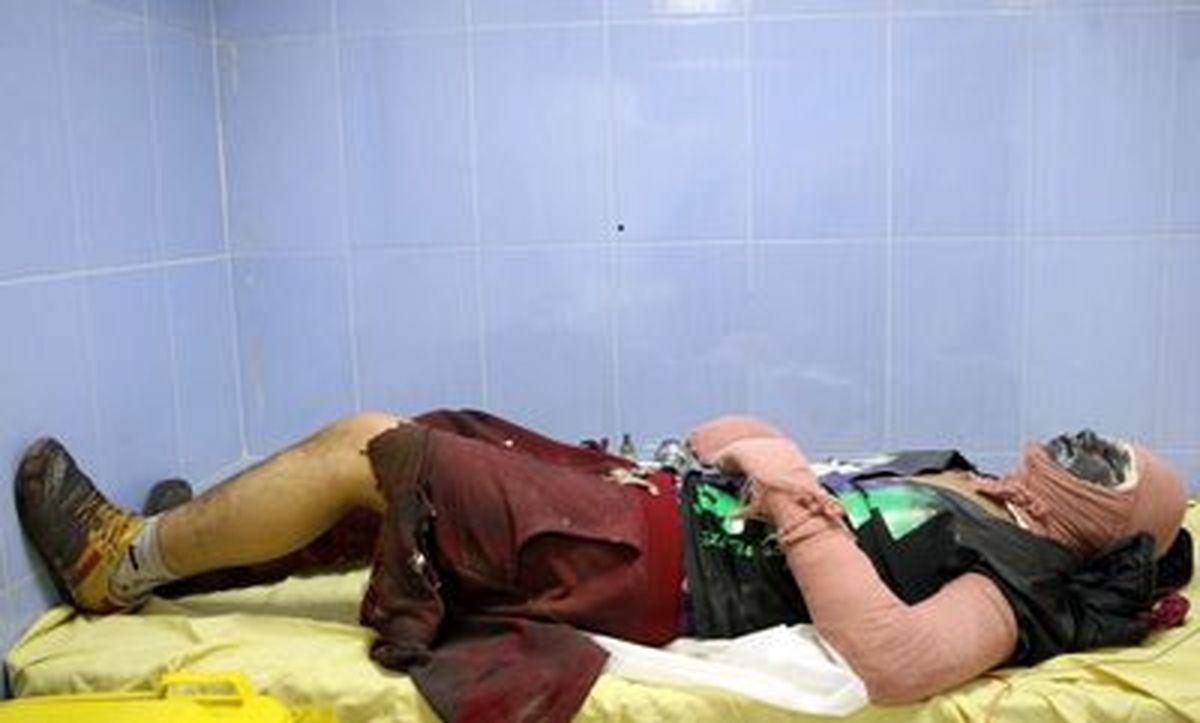 قطع دست و پای جوانی در محله پیروزی
